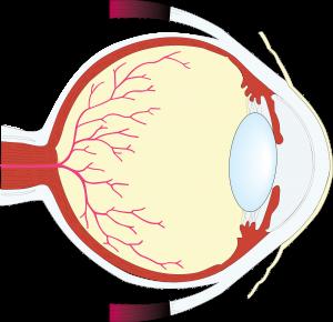 網膜剥離の方の保険加入について